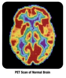 Colourful image result from a normal brain PET scan